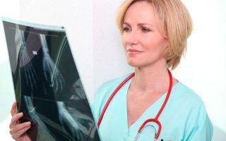 Как правильно диагностировать ревматизм?
