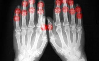 Ревматизм рук и его эффективное лечение