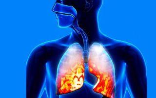 Ревматизм легких: виды, симптомы, лечение