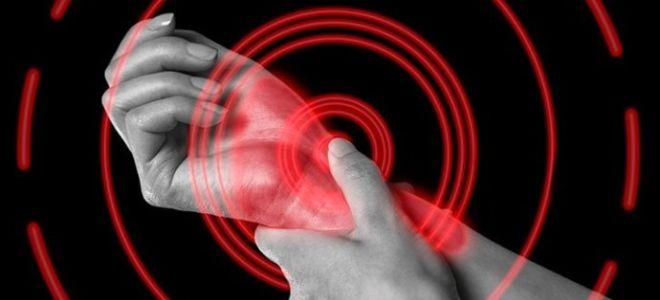 Профилактика ревматизма: как снизить риски заболевания?