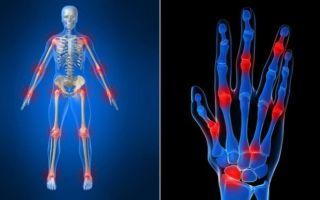 Ревматоидный артрит, что это такое, диагностика