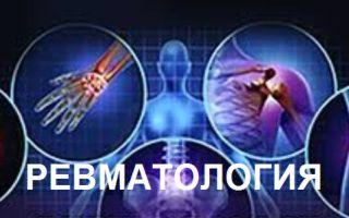 Что лечит ревматология