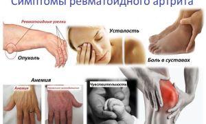 Ревматоидный артрит, основные симптомы болезни