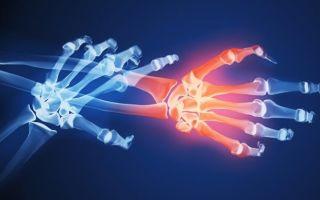 Осложнения при ревматоидном артрите