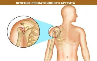 Клинические рекомендации при ревматоидном артрите: специфика диагностики, лечения