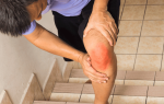 Ревматизм ног признаки и лечение