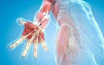 Ревматизм мягких тканей: симптомы и лечение