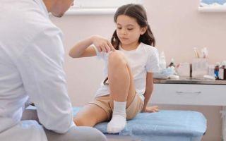 Ювенильный (детский) ревматоидный артрит