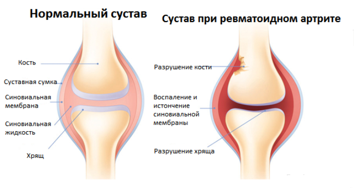 изменения суставов при ревматоидном артрите