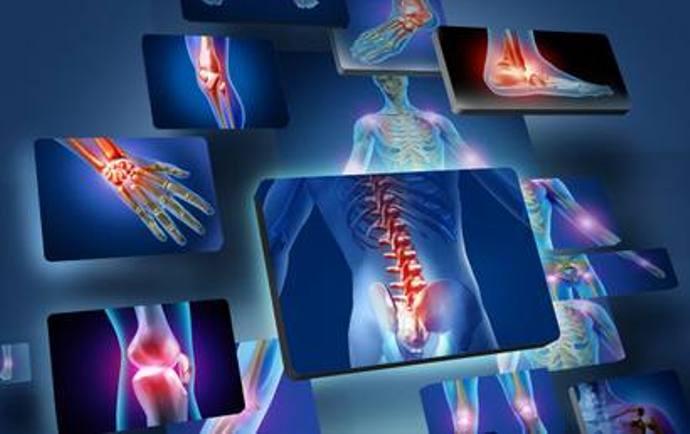 ревматизм костей