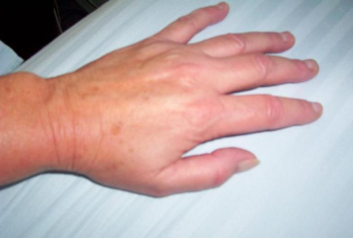 обострение палиндромного ревматизма