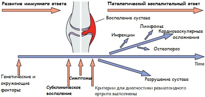 течение ревматоидного артрита
