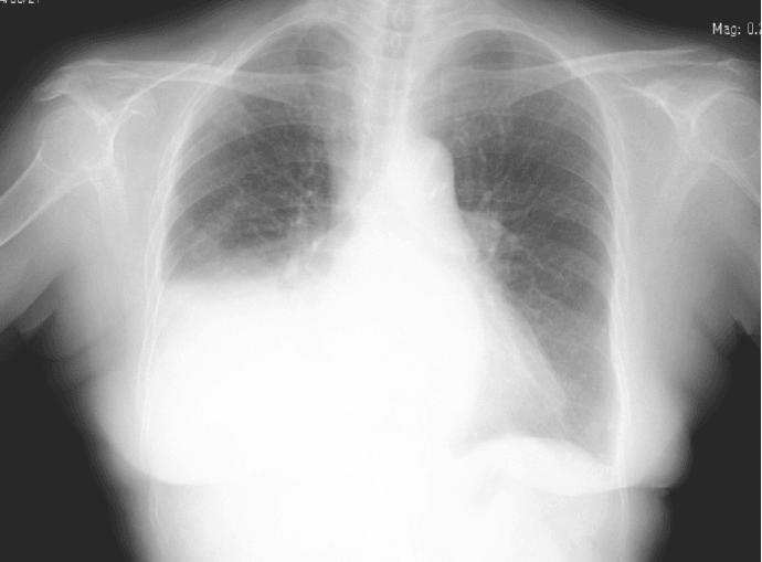 ревматическая пневмония