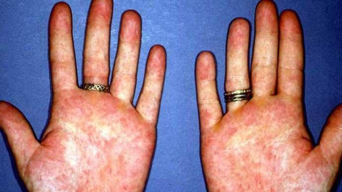 симптомы ревматизма рук