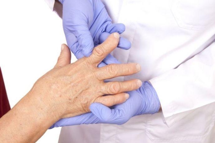 критерии диагностики ревматоидного артрита