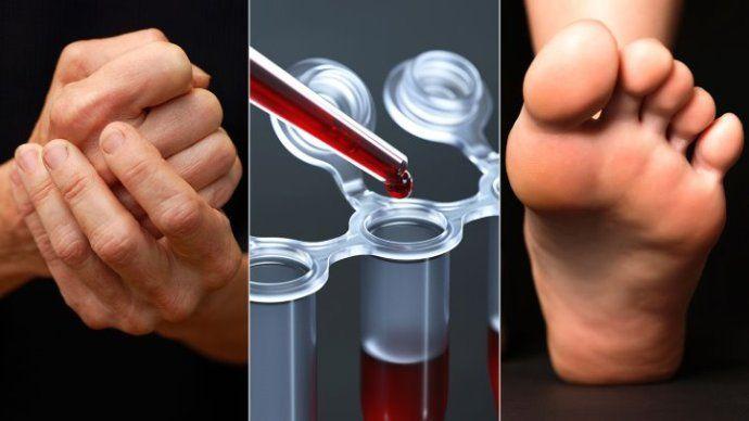 анализы на ревматоидный артрит