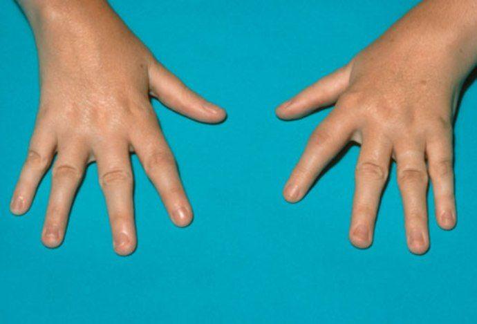 профилактика ревматизма рук