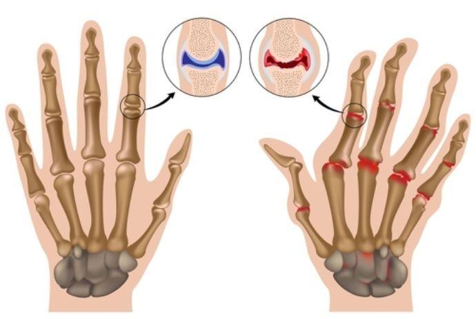 диагноз: ревматоидный артрит