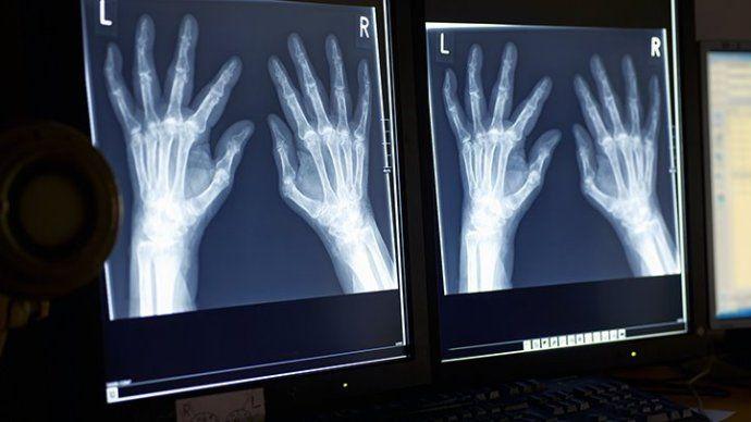 рентген ревматоидного артрита
