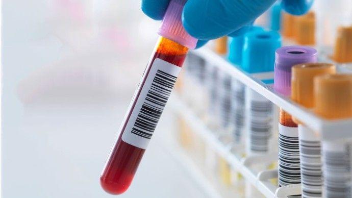 анализы на ревматоидный фактор