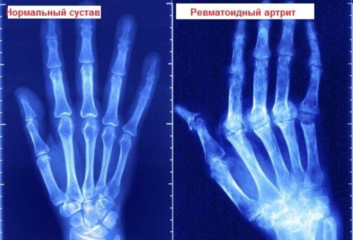 рентгеновский снимок ревматоидного артрита