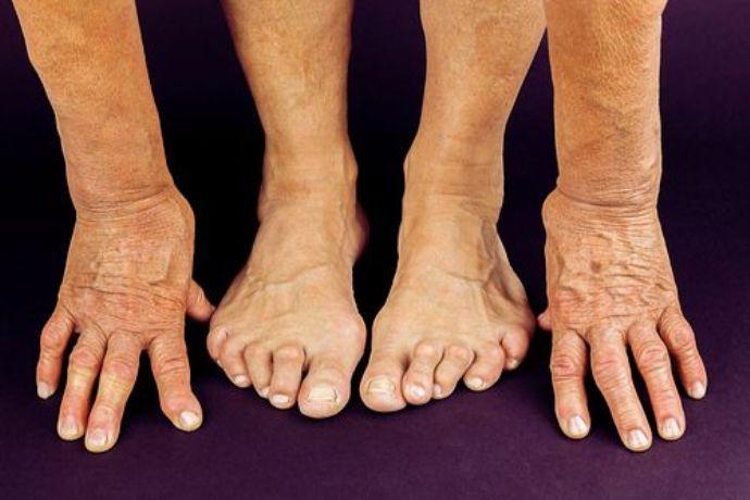 реабилитация при ревматоидном артрите