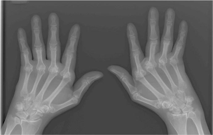 причины ревматоидного артрита кистей