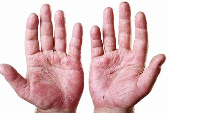 пальцы при псориатическом артрите