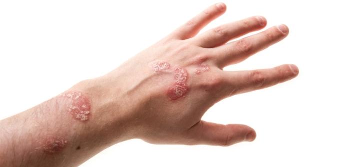 поражение кожи при псориатическом артрите