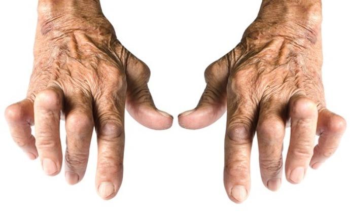 лечение ревматоидного артрита кистей рук