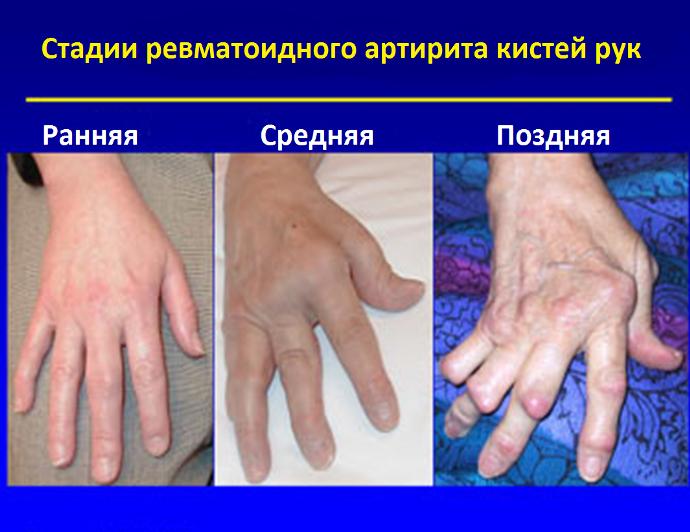 стадии ревматоидного артрита рук