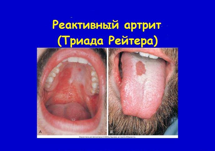 Реактивный артрит. Триада Рейтера