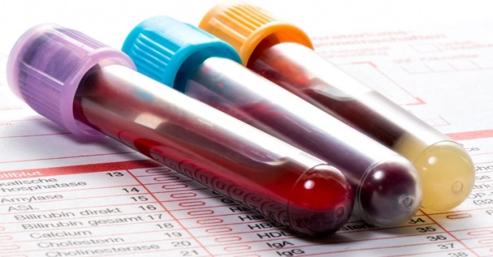 анализ крови на ревматоидный фактор